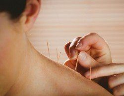 Acupuncture/Chinese Herbal Medicine