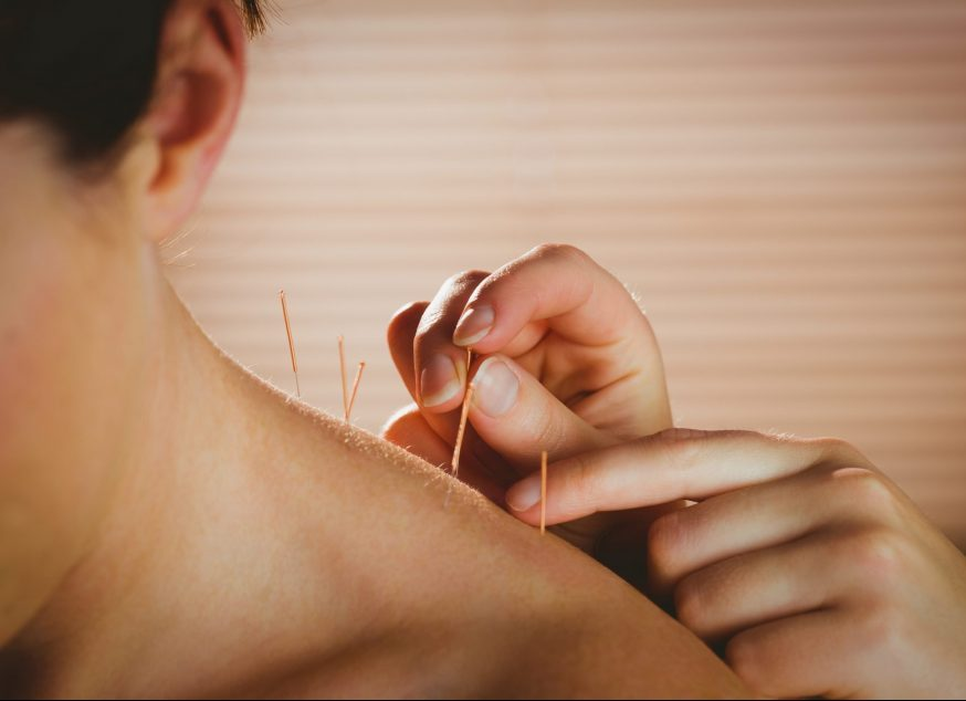 Acupuncture and Chinese Medicine treatments are available